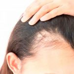 What is the best solution for baldness?