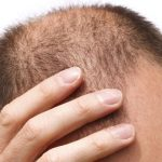 Who is the best hair transplant doctor in the world?