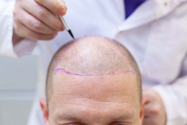 Evolution hair transplant day by day