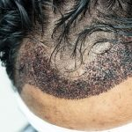 Infected Hair Transplants, What Is It?