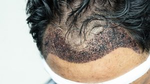 Infected Hair Transplants